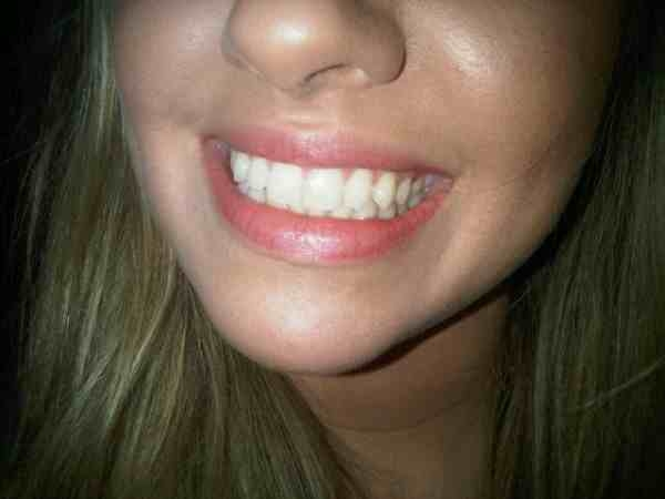 A mouth makeover: Carbamide Teeth Whitening.
