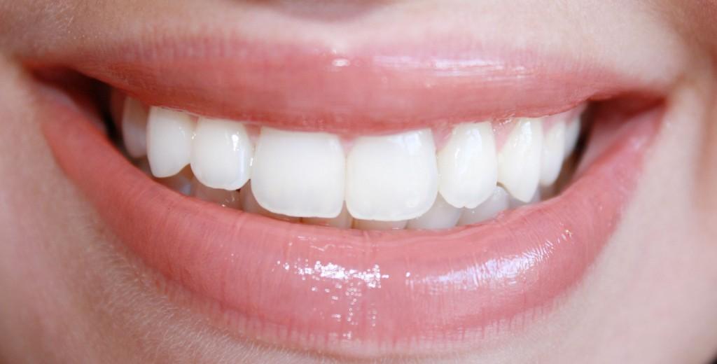 teeth whitening scar