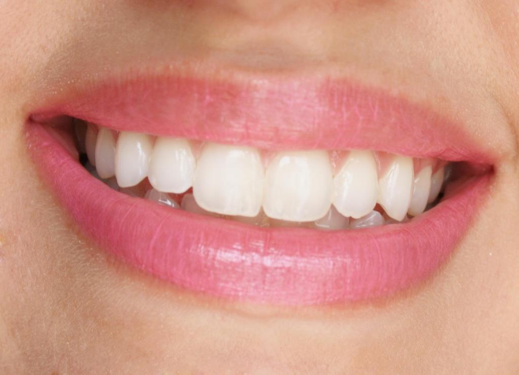 Lips 013