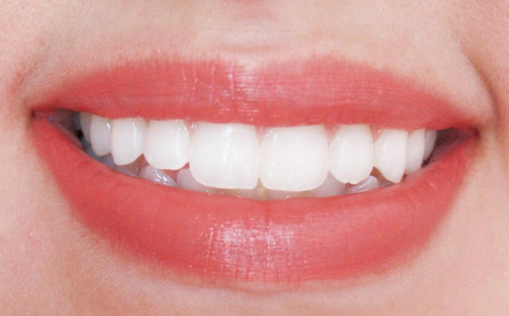 Lips 049