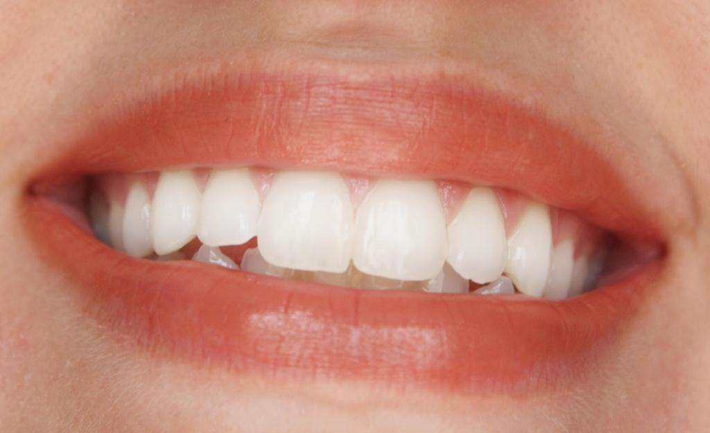 Lips 070