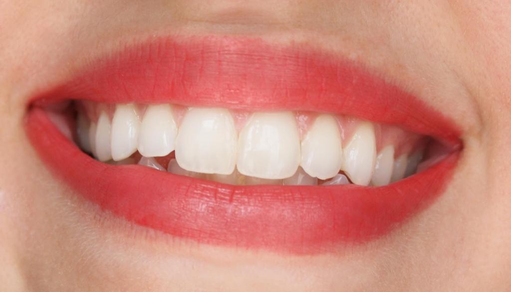Lips 076