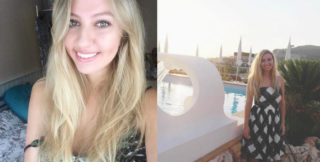 Scarlett Dixon teeth whitening