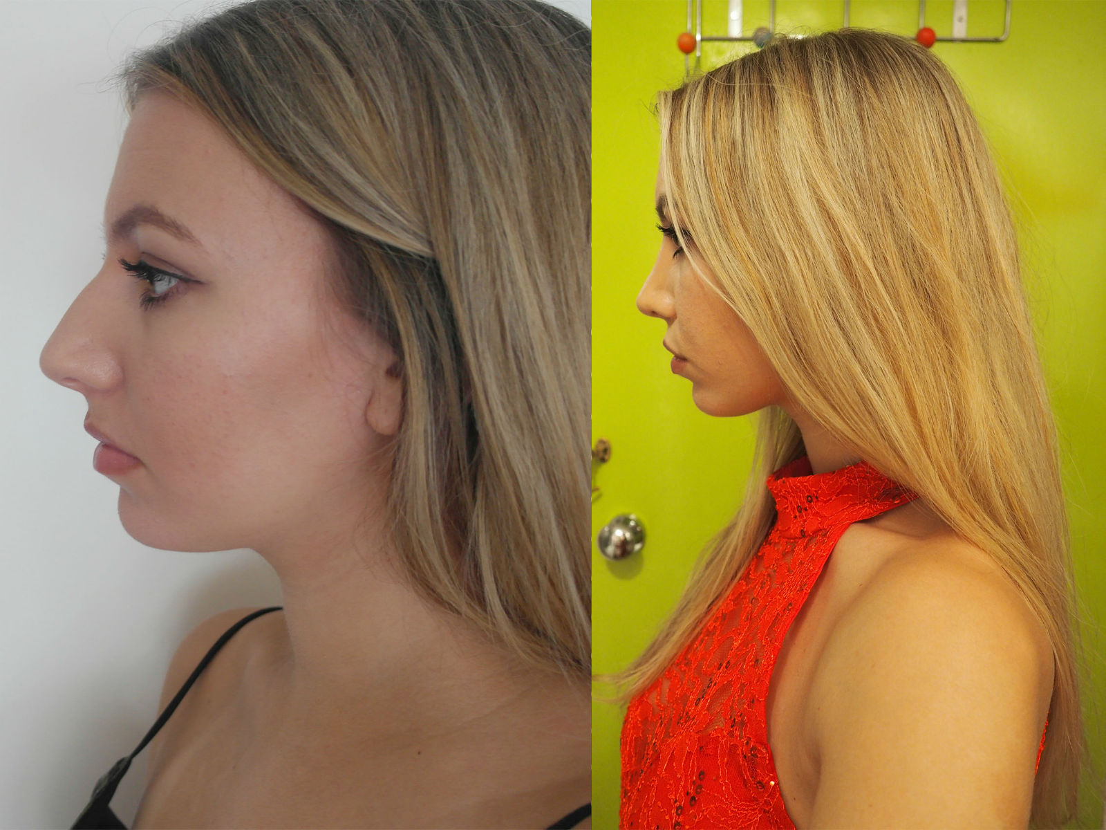 Scarlett London Rhinoplasty