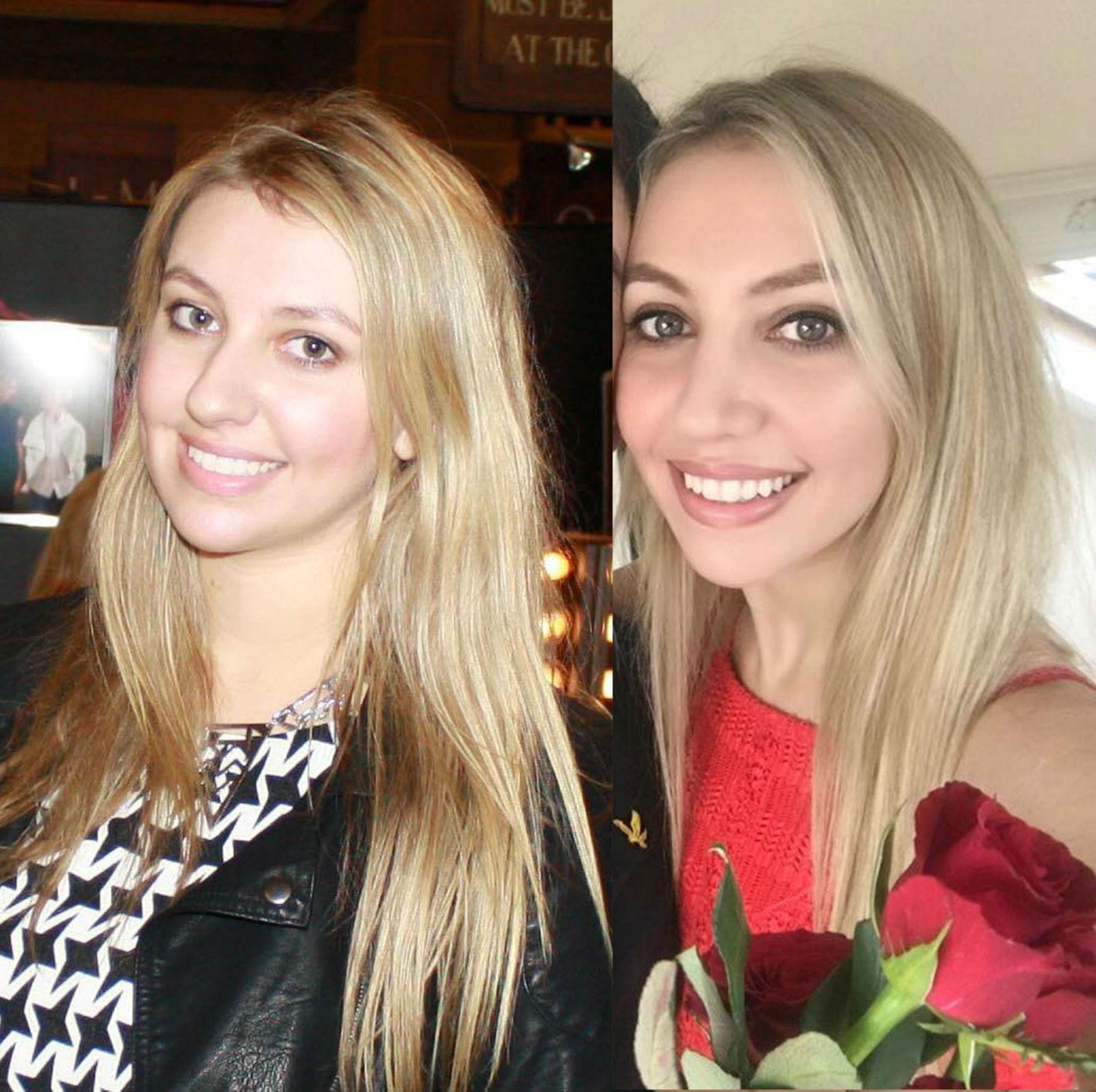 My Nose Job Story - Scarlett London - A London Lifestyle Blog
